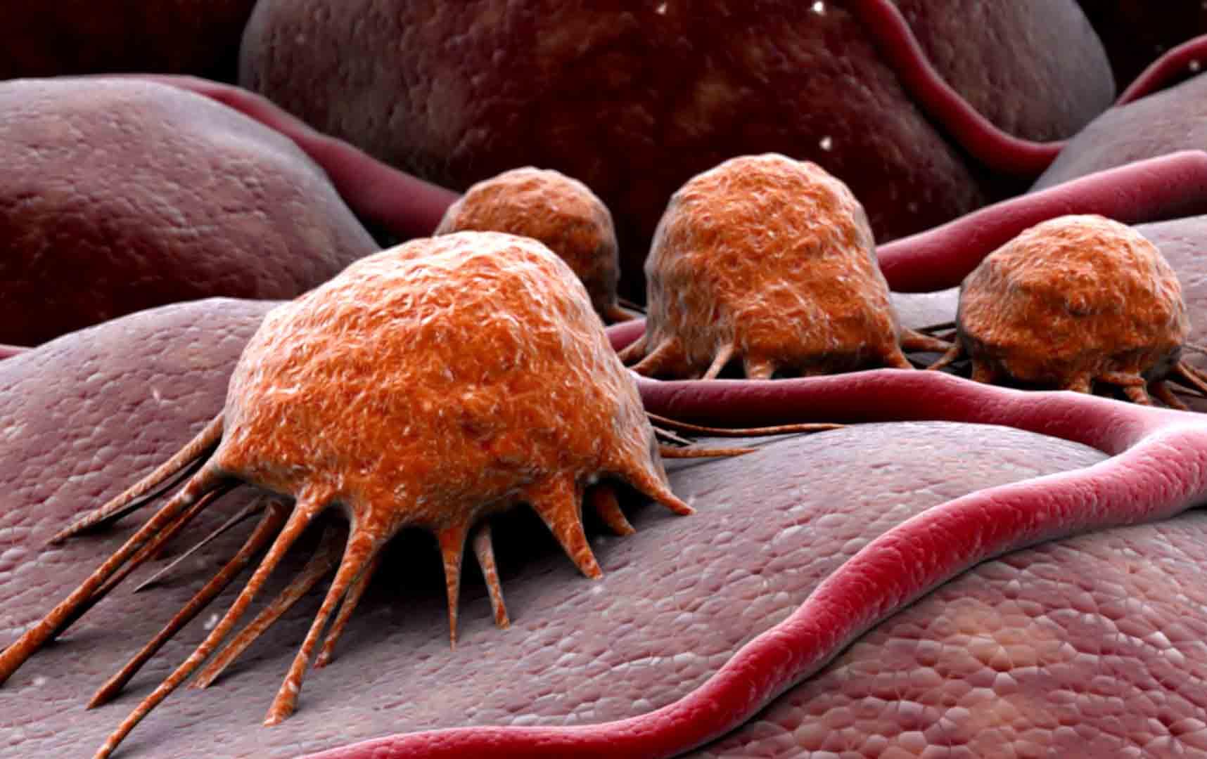 Новый метод лечения рака