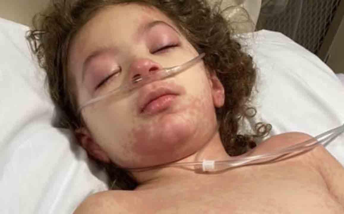 Дети начали заболевать MIS-C после заражения коронавирусом